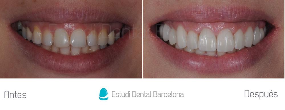 Invisalign-Carillas-de-Porcelana-e-Implantes-Dentales-caso-clínico-estética-dental-completa