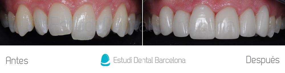 caso-mejorar-dientes-irregulares-con-carillas-dentales-y-blanqueamiento-frente-superior