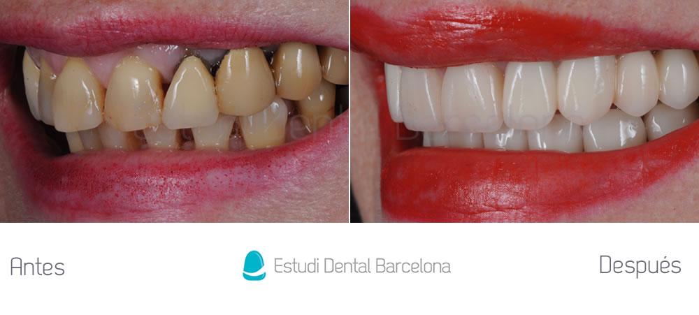 como-mejorar-dientes-gastados-con-carillas-y-coronas-dentales-y-blanqueamiento-fotos-izquierda