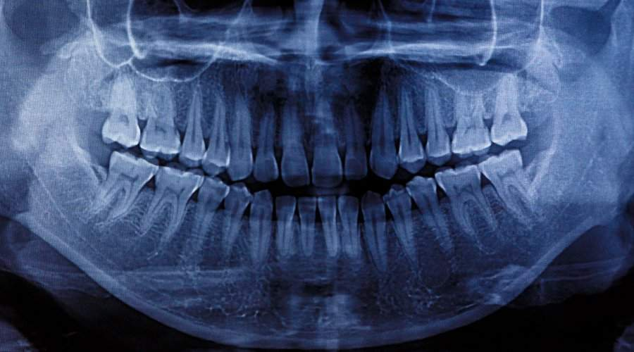 numero de dientes