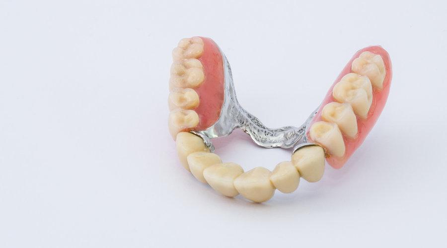 protesis dentales removibles flexibles opiniones