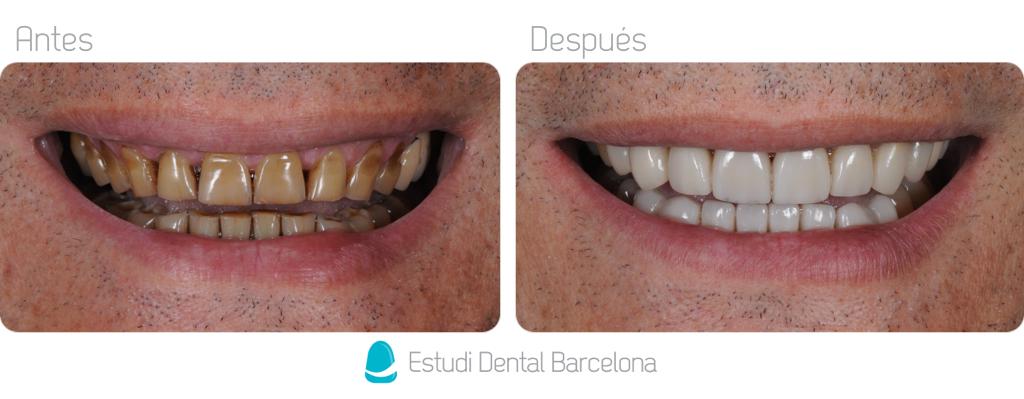 Carillas Dentales Dientes Manchados Barcelona