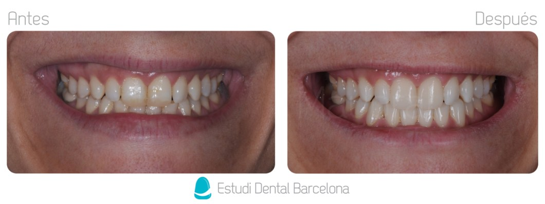 Carillas de Composite Clinica Dental en Barcelona