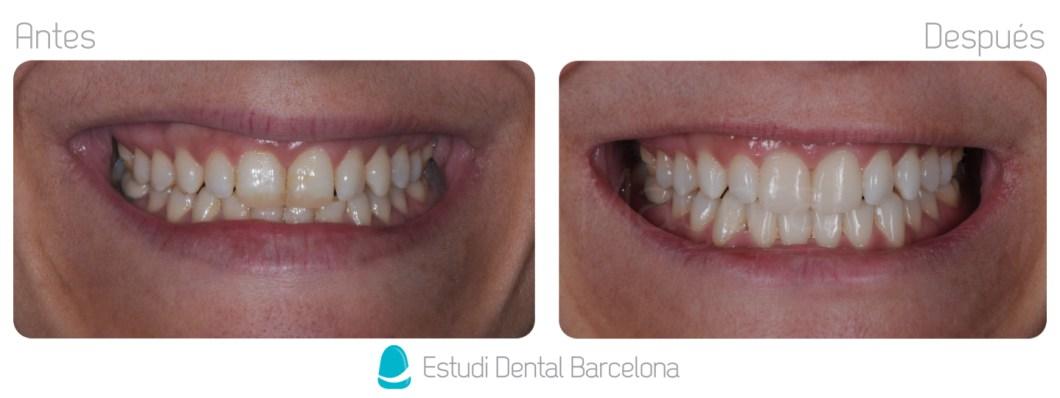 estetica dental carillas dentales