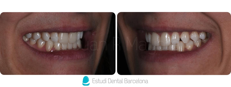 dientes con carillas antes y despues de adelgazar