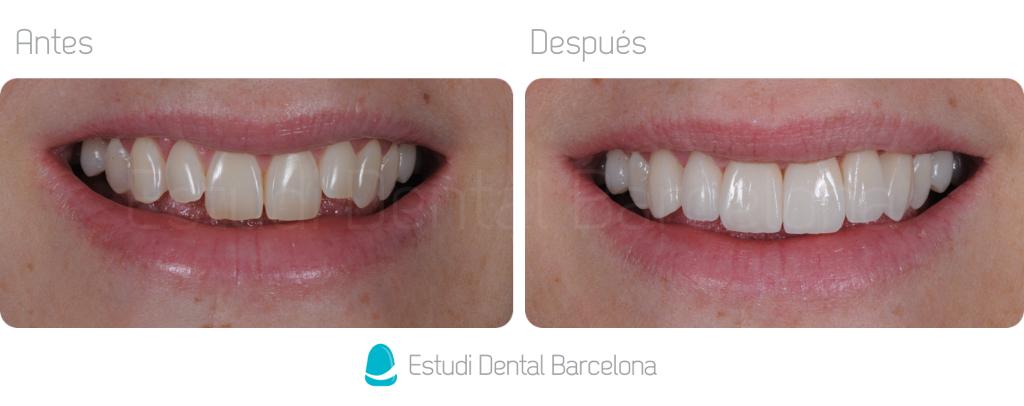 Carillas de Porcelana Estética Dental Barcelona