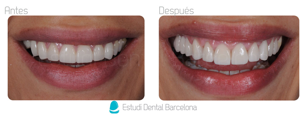 Tratamientos con coronas o fundas dentales en barcelona edb for Estudi dental barcelona