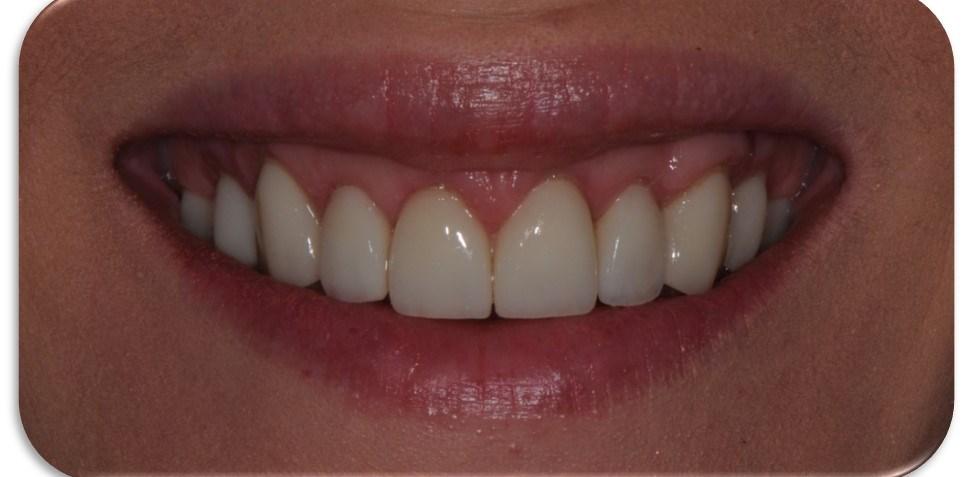 estética dental con carillas de porcelana en Barcelona para dientes cortos