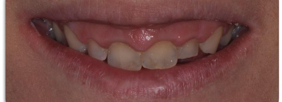 estética dental en Barcelona para dientes cortos