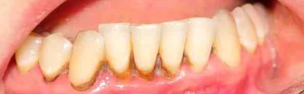 gingivitis-enfermedad-de-las-encias