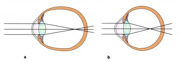 miopia-axial-y-curvatura