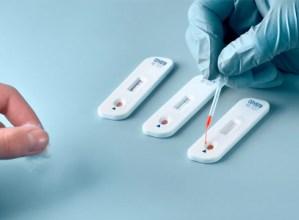 COVID-19a norberak detektatzeko testak aste honetan eskuratu ahal izango dira farmazietan