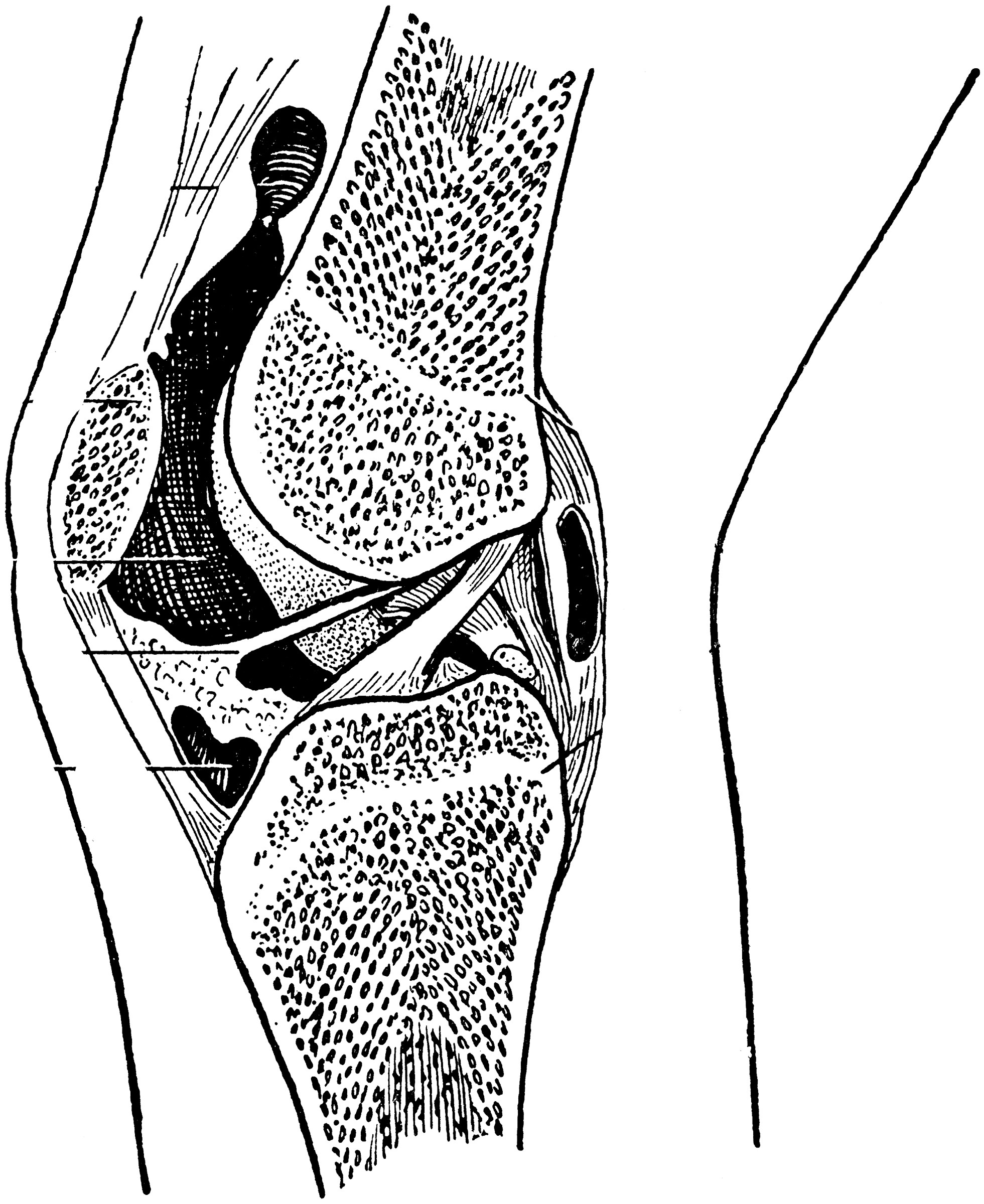 Epiphyseal Lines In The Knee Joint Clipart Etc