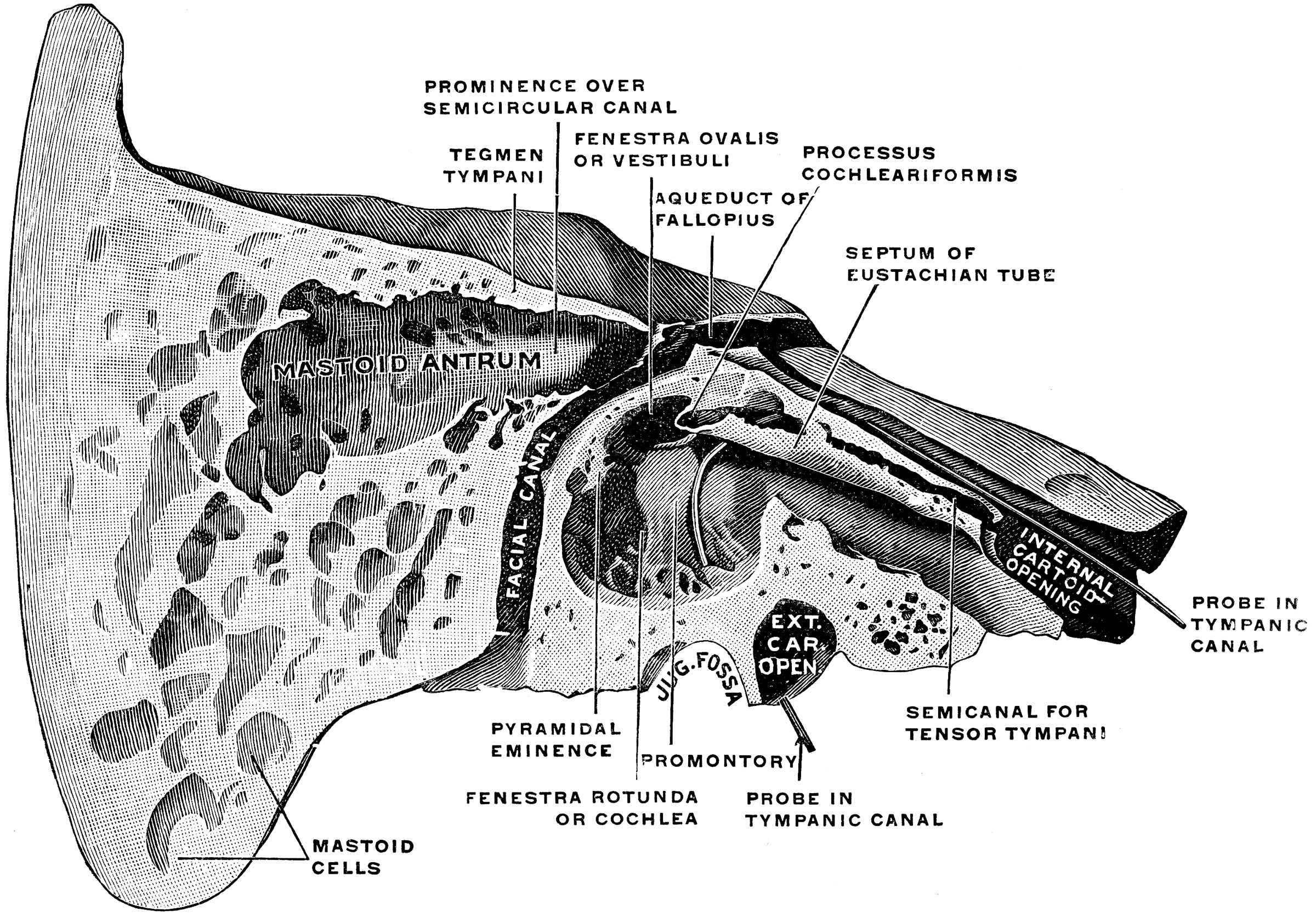 Temporal Bone Cut Open Clipart Etc