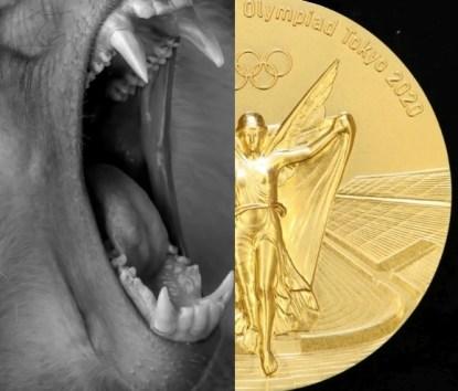 金メダル噛付きも「交換不要」と後藤投手 河村市長には世界がブーイング
