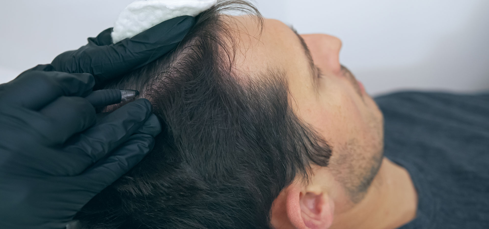 Scalp Micropigmentation Tattooing