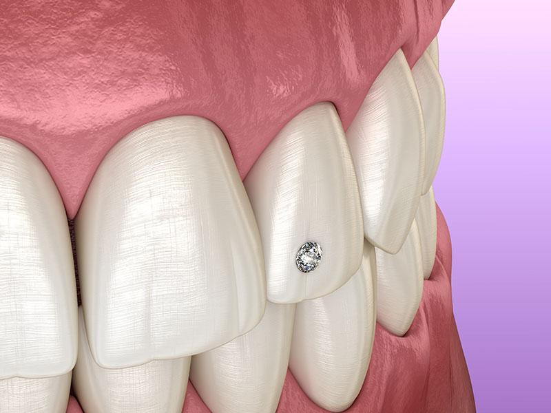 Tooth Gem Up Close