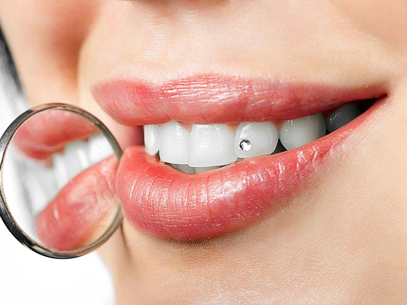Tooth Gem After Procedure