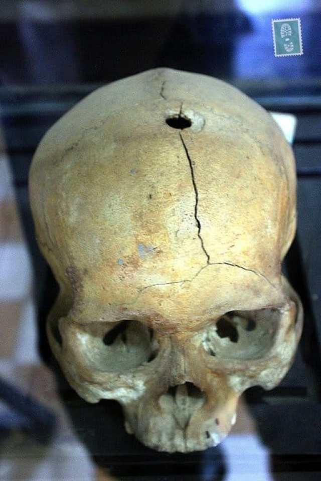 A skull in Cambodian museum