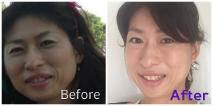 collage-before-after