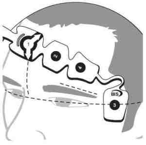Positionnement des 4 électrodes du capteur BIS