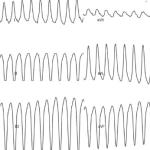 Tracé ECG montrant une tachycardie Ventriculaire facile à reconnaître
