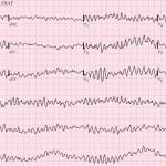 Tracé ECG révélant une fibrillation ventriculaire