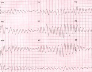 Tracé ECG typique d'une torsade de pointe