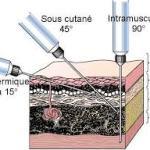 Inclinaison de la seringue selon le type d'injection