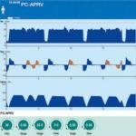 Zffichage des courbes et réglages en APRV