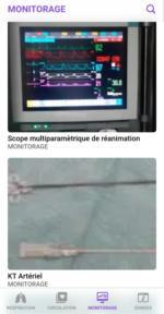 p monitorage