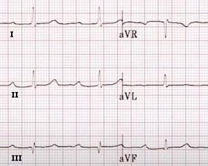 Bloc Auriculo ventriculaire du premier degré