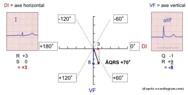 Calcul de l'axe de QRS selon la méthode vectorielle