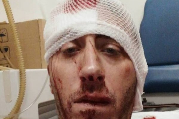 Assaulted Bosnian journalist Vladimir Kovacevic