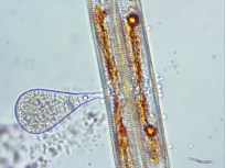 Some kind of a parasite (left) sucking the life out of a diatom (right).