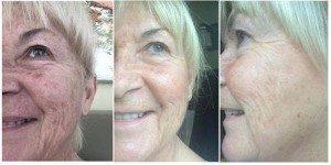 peau-raffermie-beautystrips-fgxpress-300x150