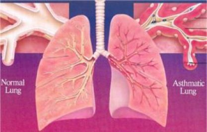 Asthmatic lung