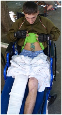 Dima Trompak, 23, his right leg shattered in a land-mine blast, his liver, stomach and other organs pierced by shrapnel, is in the Adopt a Soldier program.