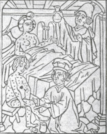 Treatment of syphylis by burns. Woodcut, late XV century