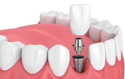 Implantes dentales: las dudas más frecuentes