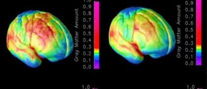 Sustancia gris en el cerebro