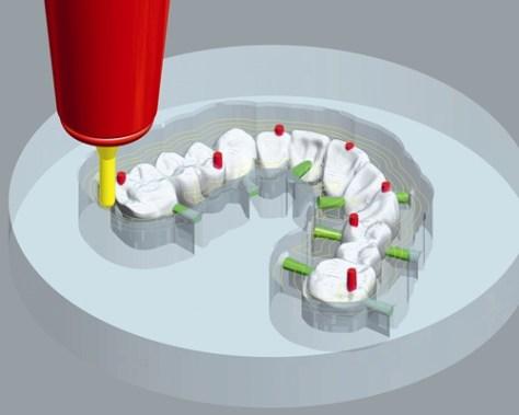 Dental Machining5