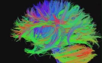 Built-in 'brain calendar' provides insight into schizophrenia
