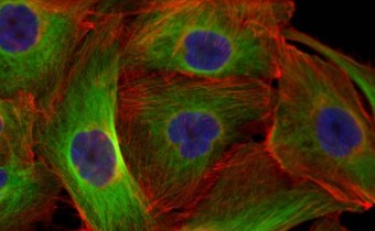 Research reveals how the body can detect cancerous cells