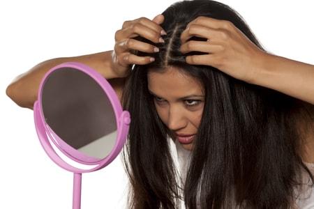 縮毛矯正をすると禿げる