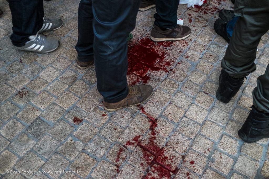 Une personne blessé avec un nez arraché lors d'un tir / Nantes 2014.