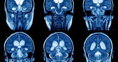 Qu'arrive-t-il au cerveau de quelqu'un quand il se plaint trop