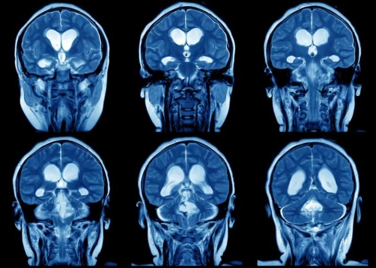 brain-768x548-1