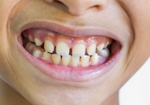 gap-teeth-clear-aligner-treatment