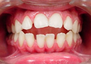 open-bite-clear-aligner-treatment